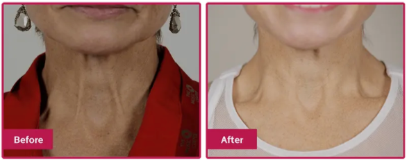 5th and Glow Unbuttoned Beauty Before and After