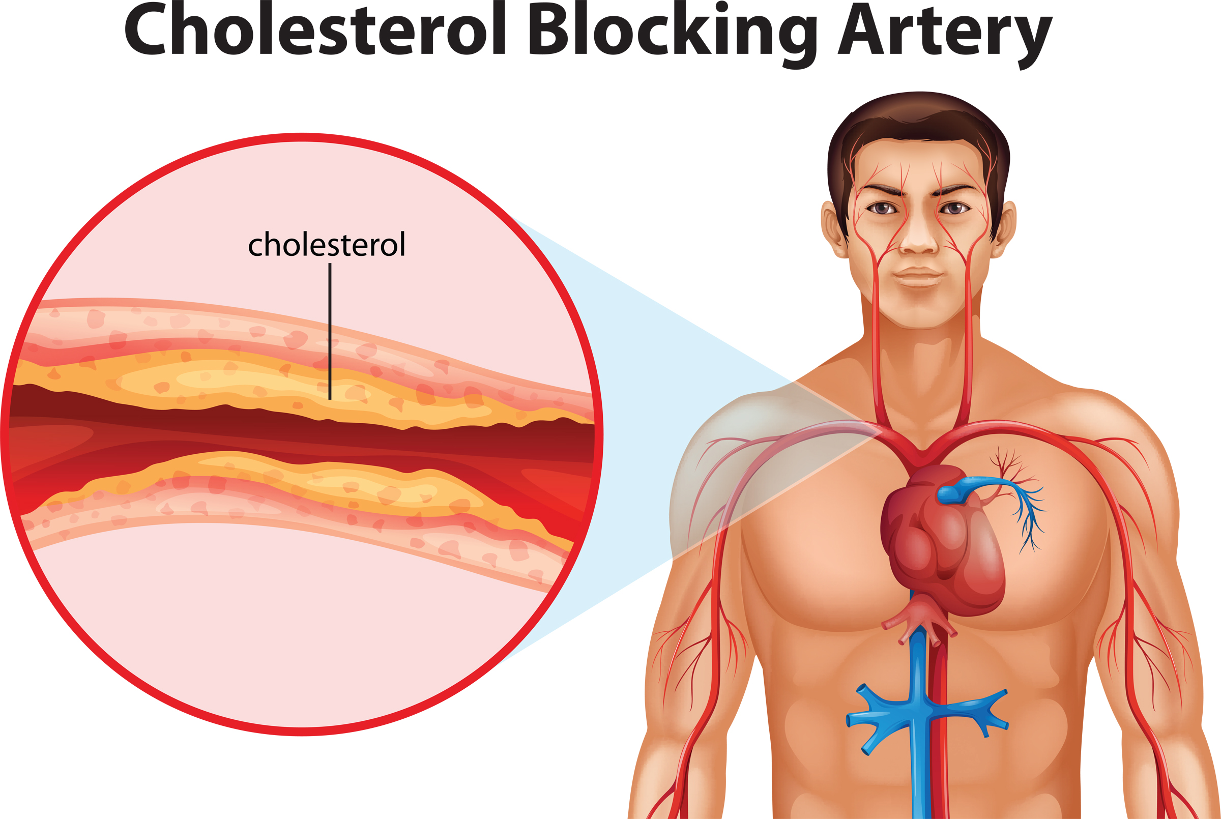 Cholesterol Optimizer Review