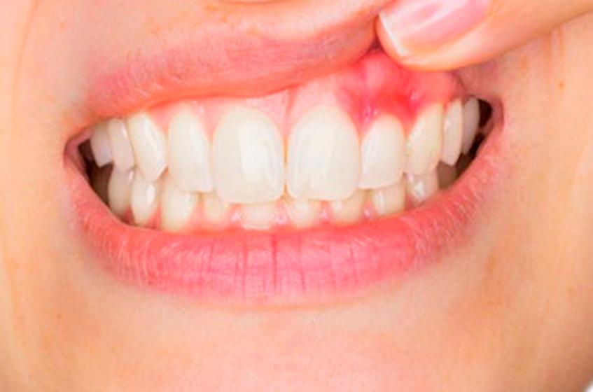 Dentitox Pro Drops Reviews